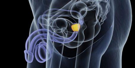 Аденома простаты: хирургическое лечение мужской проблемы