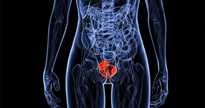 Опухоли мочевого пузыря: виды образований и методы лечение