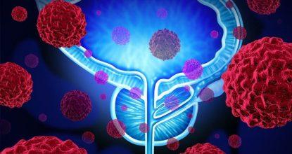 Рак простаты 3 степени: как жить после диагноза