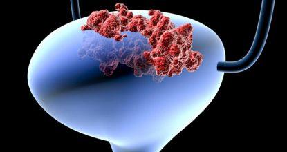 Рак мочевого пузыря: симптомы и диагностика