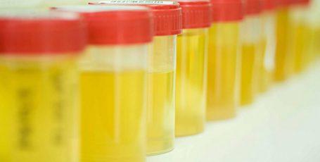 Бессимптомная бактериурия: стоит ли опасаться недуга