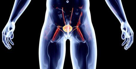 Рак предстательной железы четвёртой стадии: возможности современной медицины