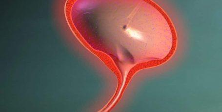 Как проводится промывание мочевого пузыря: показания и противопоказания к процедуре