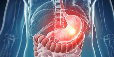 Препарат Лосек — эффективное средство в борьбе с язвой желудка