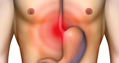 Лансопразол: современное лечение язвы и гастрита