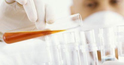 Анализ мочи при пиелонефрите: правила сдачи и расшифровка показателей