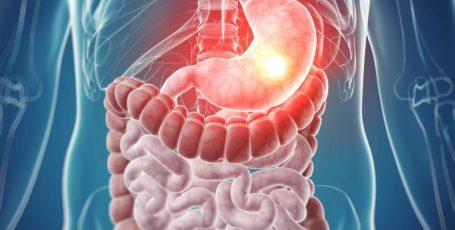 Препарат Циметидин: классическое средство в лечении язвы желудка