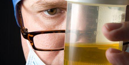 Мутная моча у мужчин: провоцирующие факторы и методы лечения
