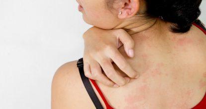Аллергия у беременных: причины, проявления и лечение