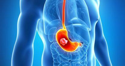 Гастроцепин: надёжная защита для желудка