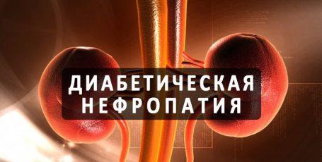 Диабетическая нефропатия: как спасти почки
