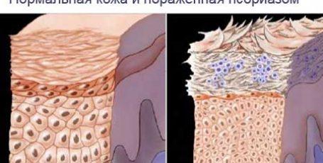 Мазь от псориаза: обзор гормональных и негормональных средств