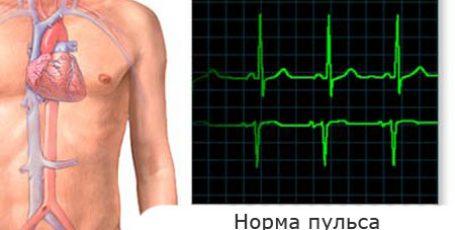 Норма пульса человека по возрастам — таблица у мужчин и женщин