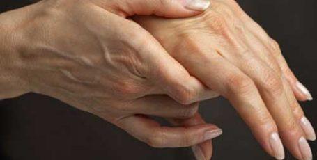 Ревматоидный артрит: первые признаки, симптомы и лечение
