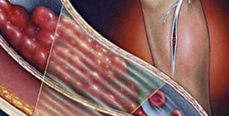 Тромбофлебит: первые признаки, симптомы, диагностика и лечение