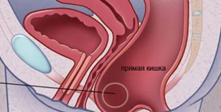 Ректоцеле: методы лечения, симптомы и осложнения болезни