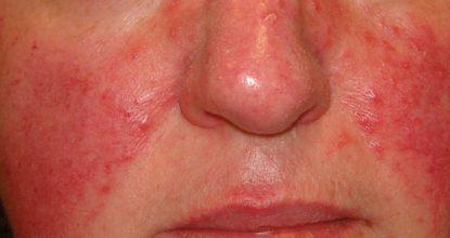 Розацеа: причины, симптомы и лечение розацеа на лице