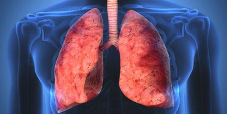 Саркоидоз легких: формы, симптомы и лечение