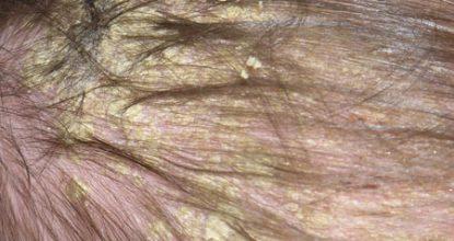 Себорейный дерматит волосистой части головы и лица, причины и лечение