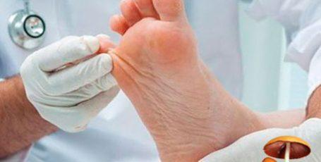 Симптомы грибка стопы, как проявляется грибок — методы лечения, фото