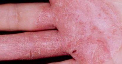 Сухая экзема на руках и ногах: симптомы и методы лечения