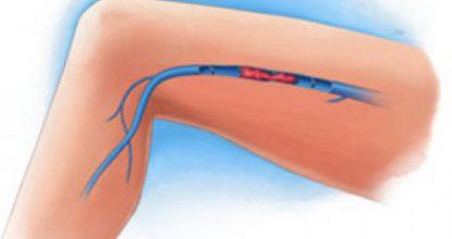 Тромбофлебит нижних конечностей: причины, симптомы и лечение