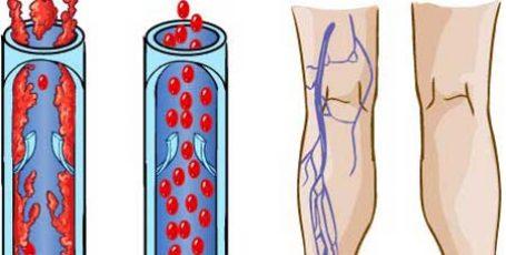 Тромбоз глубоких вен нижних конечностей, симптомы и лечение