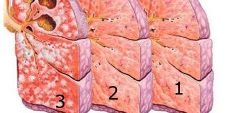 Формы туберкулеза легких, как передается и первые признаки на ранних стадиях