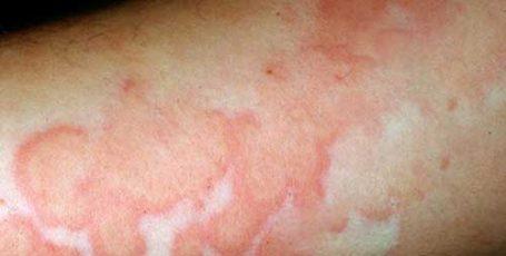 Васкулит: причины, симптомы и лечение заболевания