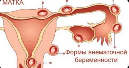 Симптомы внематочной беременности на ранних сроках, диагностика и удаление