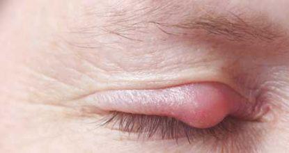 Ячмень на глазу: причины появления и лечение в домашних условиях