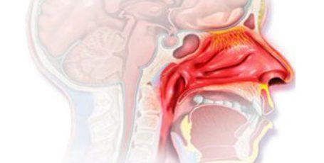 Заложенность носа без насморка — причины и лечение